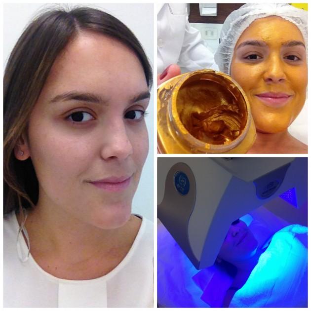 Foto minha pós tratamento: sem nenhuma maquiagem para vocês verem o resultado, pele ótima (modéstia a parte rs), e algumas etapas do tratamento